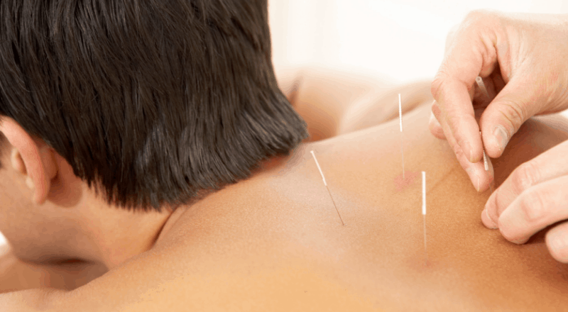 Clinique d'acupuncture Robert Dufour